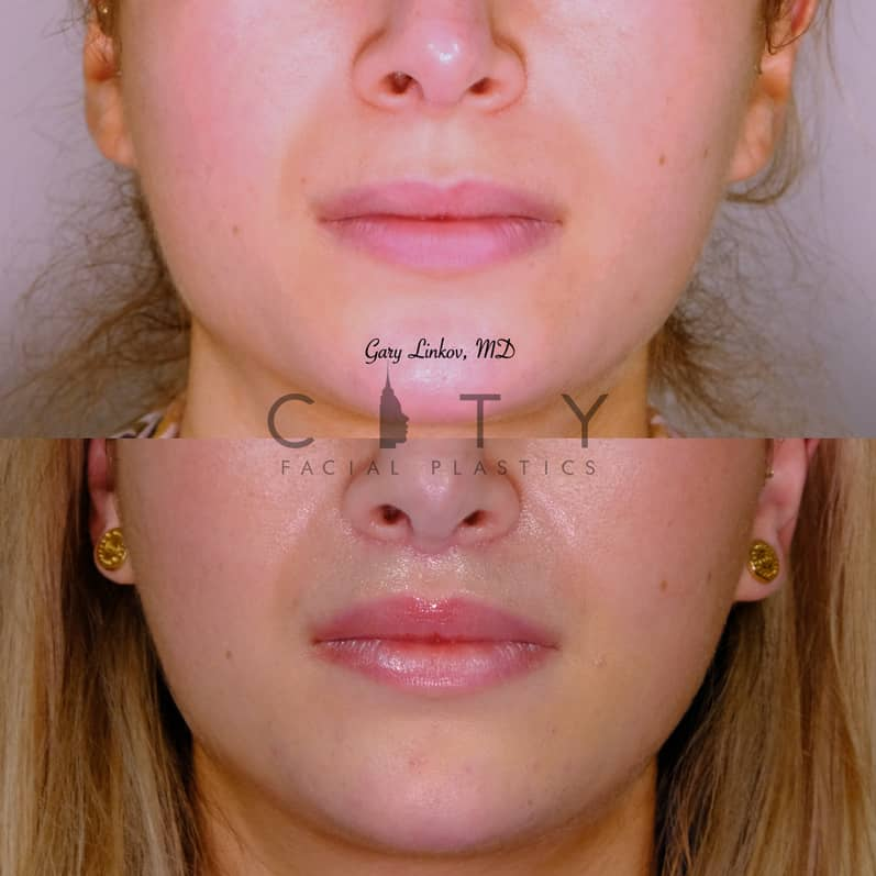 Lip Lift 37 Frontal Mouth Closed