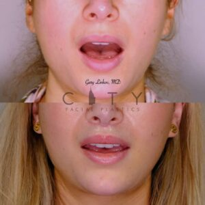 Lip Lift 37 Frontal Mouth Open