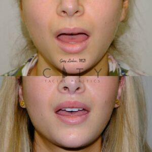 Lip Lift 37 Frontal Mouth Open Flash