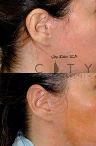 Otoplasty 3 Right Ear