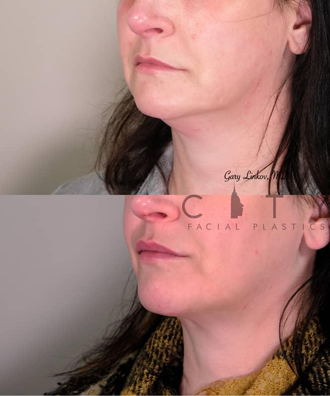 Submental Liposuction 3 Left Oblique