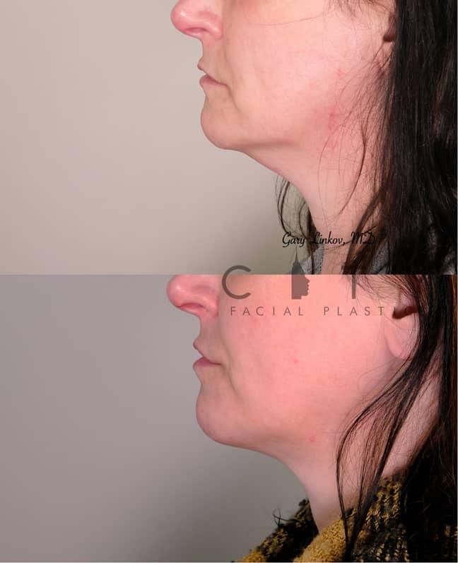 Submental Liposuction 3 Left Profile