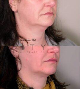Submental Liposuction 3 Right Oblique