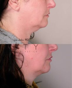 Submental Liposuction 3 Right Profile