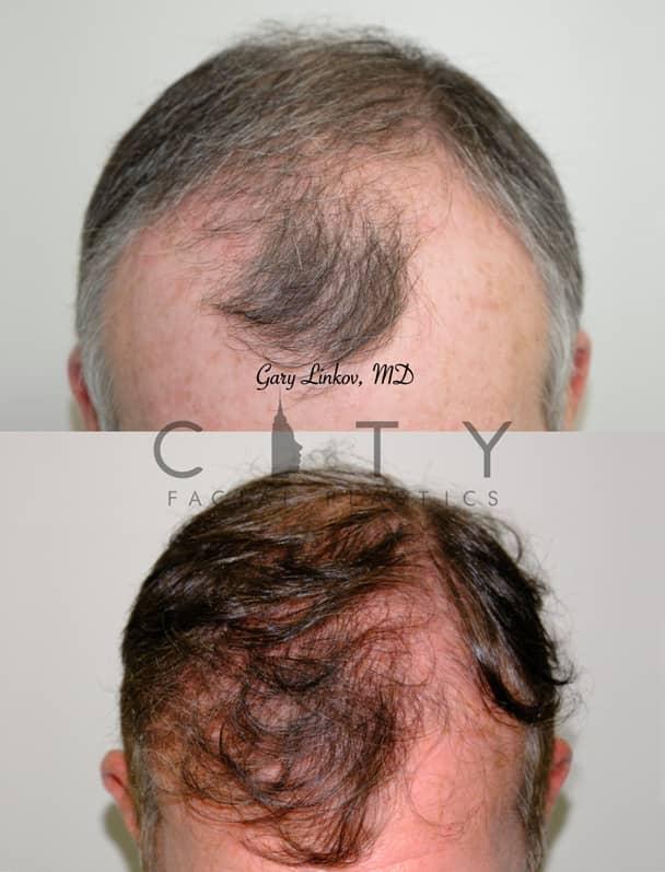 Hair Transplant NYC | Frontal Down