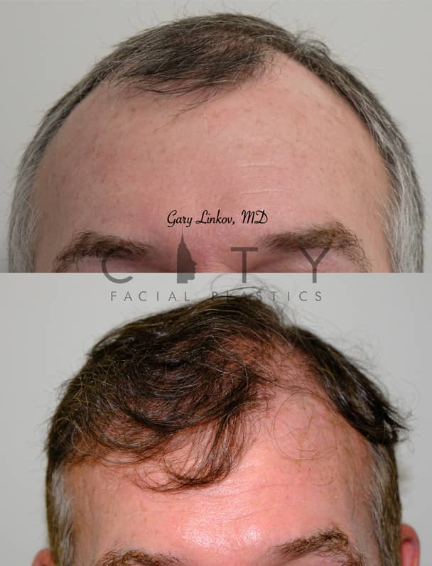 Hair Transplant NYC | Frontal