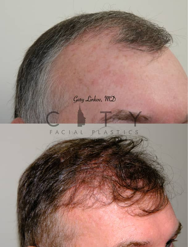 Hair Transplant NYC | Oblique