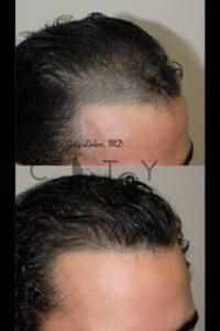 Hair Transplant Right Case 3