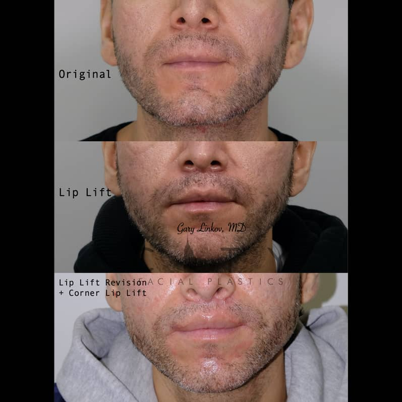 Revision Lip Lift and Corner Lift in NYC | Frontal Mouth Closed