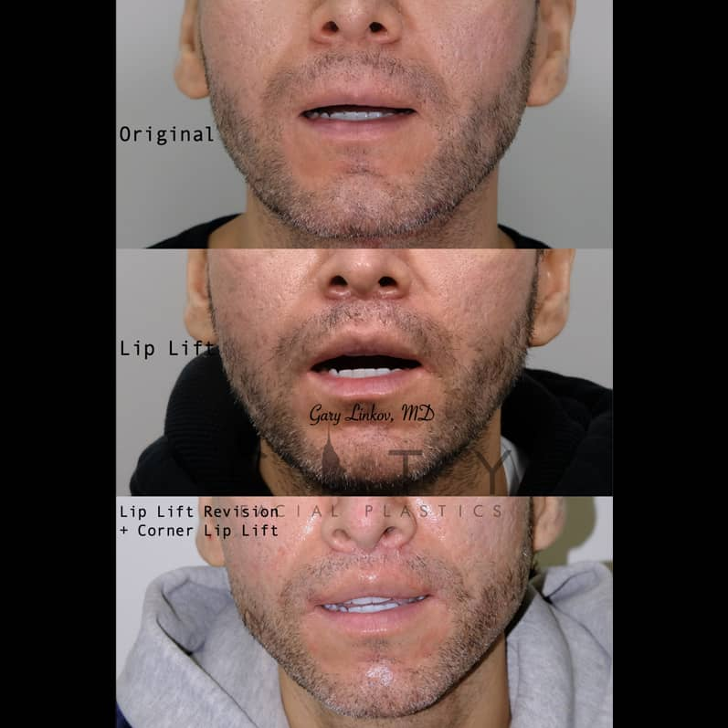 Revision Lip Lift and Corner Lift in NYC | Frontal Mouth Open