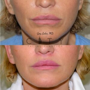 Lip Lift 38 Frontal Mouth Closed