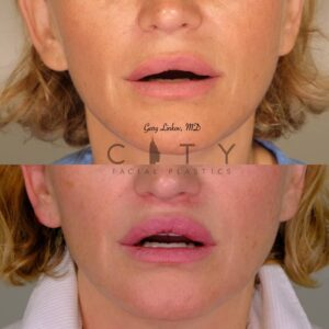Lip Lift 38 Frontal Mouth Open