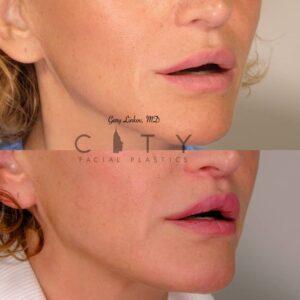 Lip Lift 38 Right Oblique