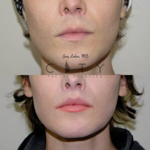 Lip Lift 40 Frontal Mouth Closed