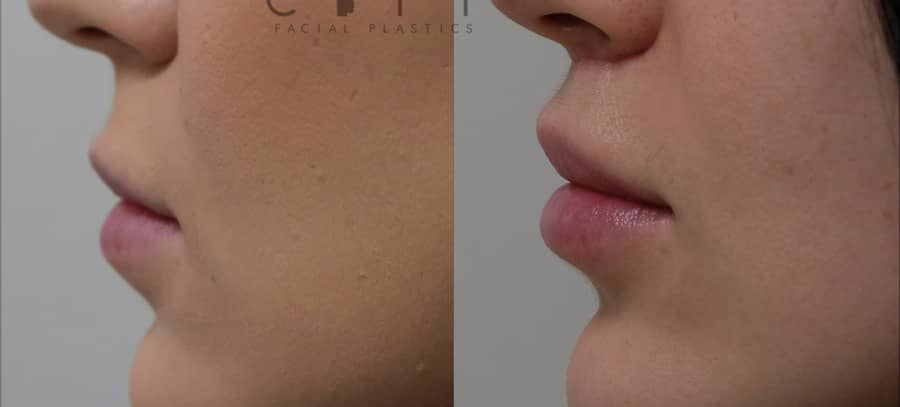 Lip Lift Case 1 | NYC Lip Augmentation, New York Cosmetic Lip Plastic Surgery