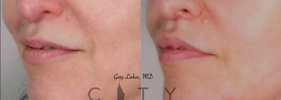 Lip Lift Case 2 | NYC Lip Augmentation, New York Cosmetic Lip Plastic Surgery