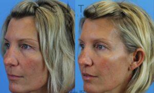 Lip Lift Case 3   NYC Lip Augmentation, New York Cosmetic Lip Plastic Surgery