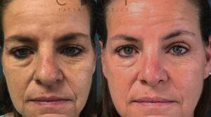 NYC Rhinoplasty Case 2