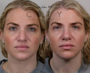 Rhinoplasty Before and After Patient Photos