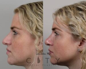 Nose Job Surgery Before After Photo