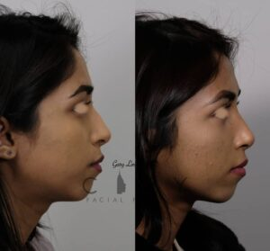 top new york rhinoplasty surgery photos