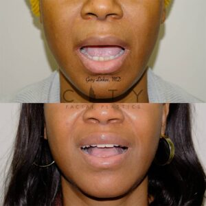 Lip Lift 41 Frontal Mouth Open