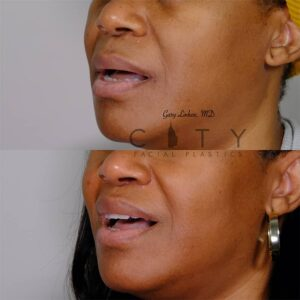 Lip Lift 41 Left Oblique Mouth Open