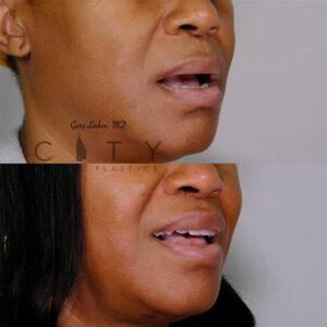 Lip Lift 41 Right Oblique Mouth Open
