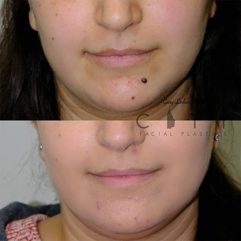 Mole Removal NYC Fronal