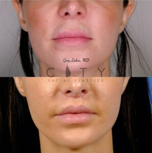 Lip Lift 42 Frontal Mouth Closed