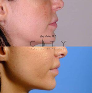 Lip Lift 42 Right Profile