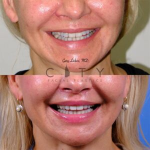 lip lift 44 frontal smile
