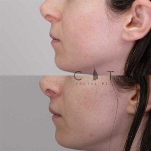 Lip lift 10 left profile.