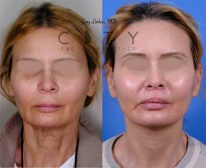 facelift 4 frontal