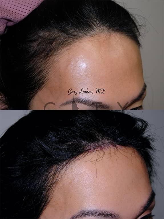 Hair Transplant 17 Right Oblique