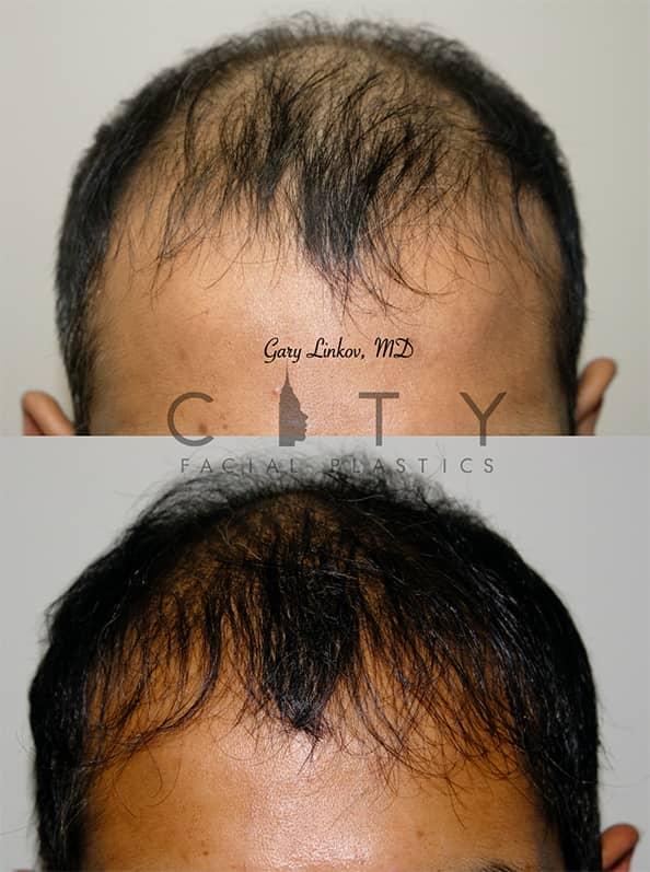 Hair Transplant Frontal Case 6