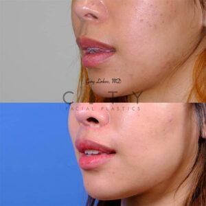 lip lift 45 left oblique
