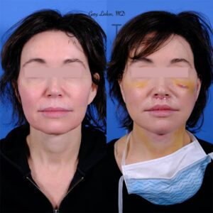 before and after lip lift frontal