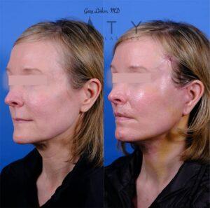 before & after lip lift left oblique