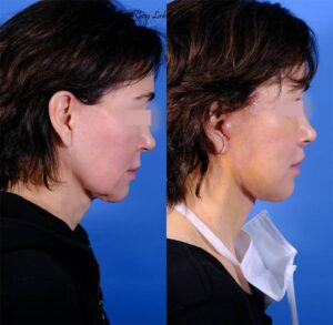 before & after lip lift right profile