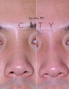 A Non-surgical liquid rhinoplasty Case 4 Frontal