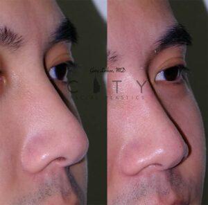 A Non-surgical liquid rhinoplasty Case 4 Right Oblique