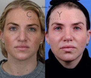 Nasal Surgery 10 Frontal