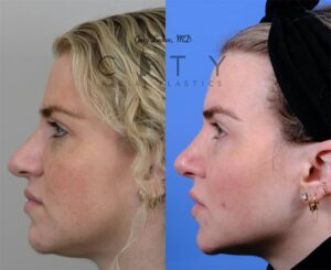 Nasal Surgery 10 Left Profile