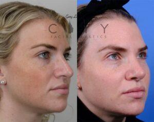Nasal Surgery 10 Right Oblique