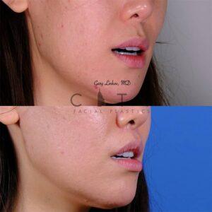 lip lift 46 right oblique