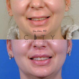 lip lift 47 frontal smile