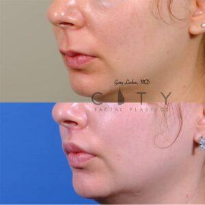 lip lift 47 left oblique