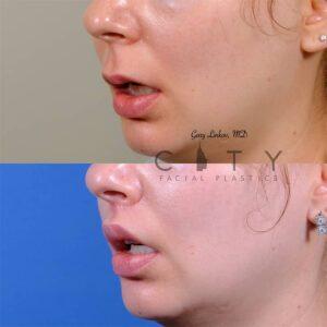lip lift 47 left oblique mouth open