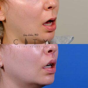 lip lift 47 right oblique